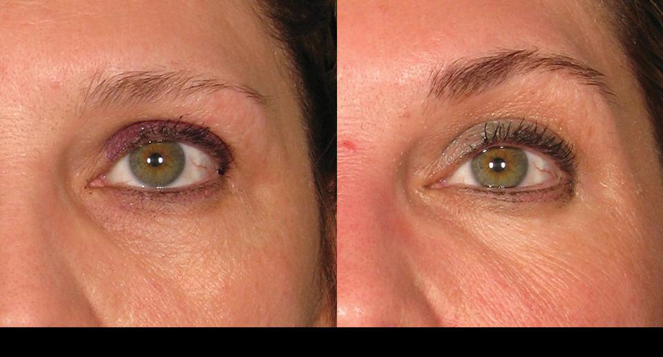 före & efter bilder ulterapy