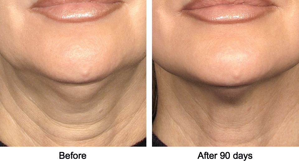 ultratherapy före/efter bilder